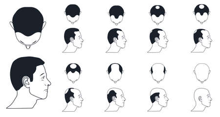male baldness types