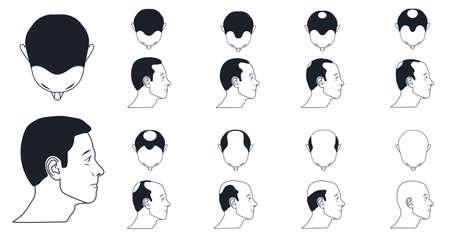 male baldness types