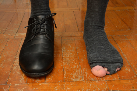 male feet in one Shoe and torn sock.