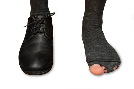 male feet in one Shoe and torn socks isolated on white background