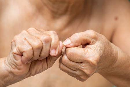 Senior woman nibbling nails, Close up, Body language feeling