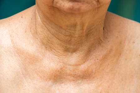 Senior woman's wrinkled neck, Close up, Blue swimming pool background, Body concept