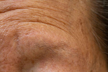 Senior womans thin eyebrows, Wrinkled forehead, Close up & Macro shot, Selective focus, Body part, Healthcare concept