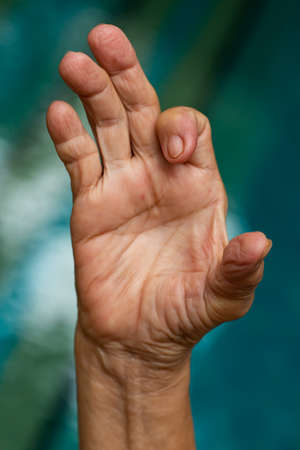 Trigger Finger lock on index finger of senior woman's right hand, Suffering from pain, Swimming pool background, Health care concept