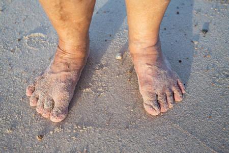 Senior woman's feet are standing on sandy beach, Varicose veins on leg and feet, Asian Body skin part, Healthcare concept