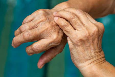 Die linke Hand der älteren Frau kratzt ihre rechte Hand, blauer Swimmingpoolhintergrund, Nahaufnahme, asiatischer Körperhautteil, Gesundheitskonzept