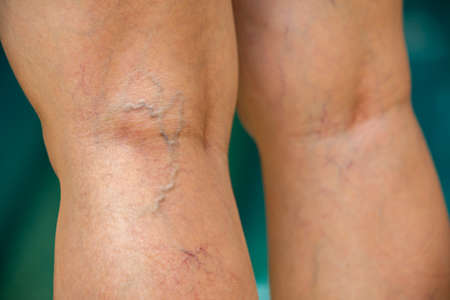 Varicose veins on the back of knees and legs in woman, Burred blue swimming pool background, Close up and macro shot, Selective focus, Asian Body skin, Healthcare and Beauty concept