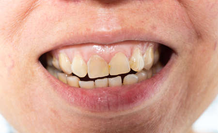 La donna asiatica mostra il tartaro sui denti frontali, sulla placca e sulla gengivite, primo piano e ripresa macro, messa a fuoco selettiva, dentiera malsana Archivio Fotografico