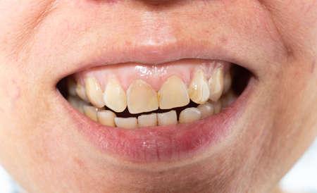 La mujer asiática está mostrando sarro en los dientes frontales, placa y gingivitis, Primer plano y disparo macro, Enfoque selectivo, Dentadura poco saludable Foto de archivo