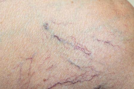 Krampfadern an einem Bein bei älteren Frauen, Nahaufnahme und Makroaufnahme, selektiver Fokus, asiatischer Körperhautteil, Gesundheitskonzept