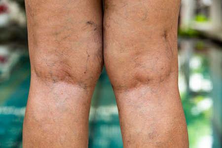 Varices à l'arrière des genoux et des jambes chez les femmes seniors Banque d'images