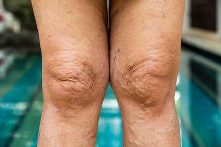 Varicose veins on knees and legs in Senior women