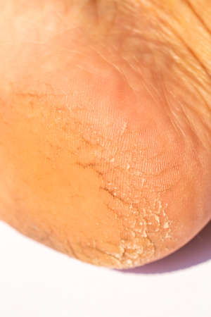 Woman' s heel break skin on white background, Close up & Macro shot, Asian Body skin part, Healthcare concept