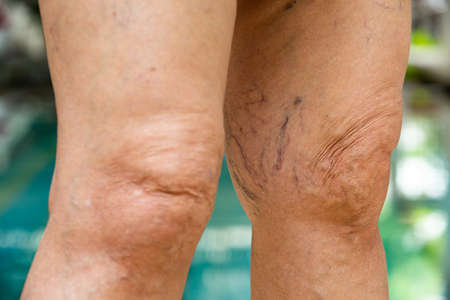 Varicose veins on knees and legs in Senior women Stock Photo