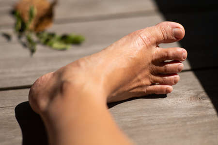 Women's second toes, middle toe, fourth toe crooked, In wooden background, Close up & Macro shot, Selective focus, Asian Body skin part, Healthcare concept Stock Photo
