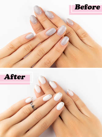 Womans hands before and after manicure correction procedure