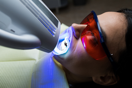 Portrait of young woman visiting dentist office for teeth whitening with photopolymer