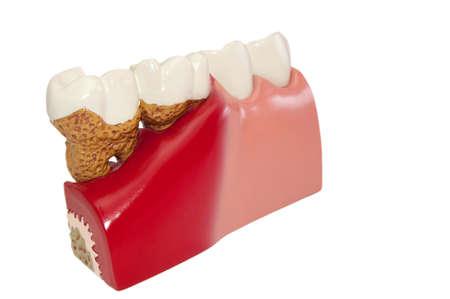 Model of various dental diseases. Stock Photo - 8009386