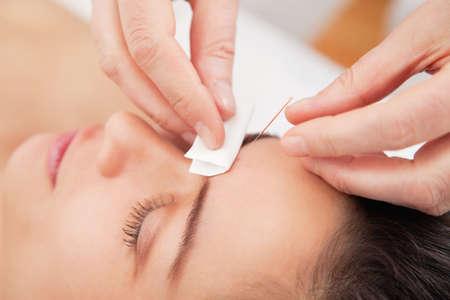 在水療中心針灸針上的年輕女子頭部