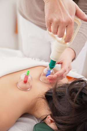 cupping: Alternative Medicine Acupressure. Suction pressure being applied via glass cups to a womans back to stimulate the flow of energy, or chi