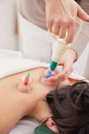akupressur: Alternative Medizin Akupressur. Saug-Druck, der �ber Glas Minibechern ein womans zur�ck, um den Fluss von Energie, oder chi stimulieren angewendet