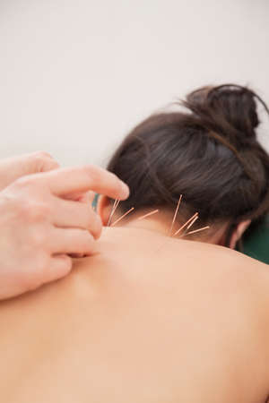 Acupuncture needles on back of a young woman at the spa