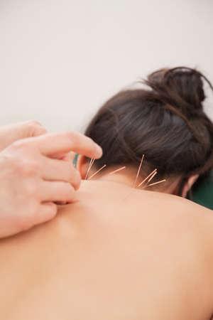 acupuntura china: Las agujas de acupuntura en la espalda de una mujer joven en el spa