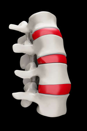 Spine structure on black background with red spinal disc photo