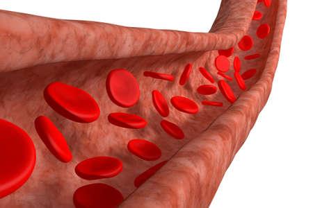ipertensione: Vena di sangue con globuli rossi isolato su bianco