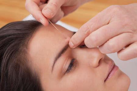 acupuntura china: Las agujas de acupuntura en la cabeza de una mujer joven en el spa de TCM