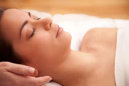 Akupunktur-Behandlung in den Kopf eines asiatischen Frau