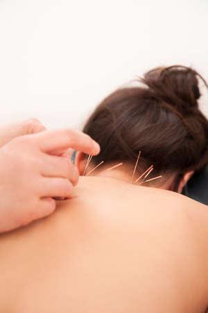 acupuntura china: La acupuntura en el cuello de una mujer asiática