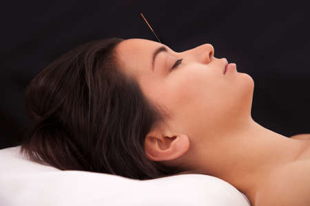 therapeutical: Acupuncture needle in the head on black background