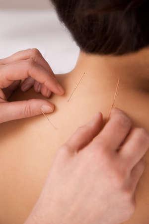 acupuntura china: Las agujas de acupuntura en la parte posterior como tratamiento tcm