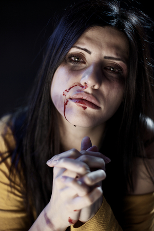 Droevige vrouw met blauwe plekken en bloed vragen om hulp Stockfoto