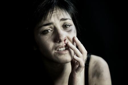 mujer joven llena de moretones y sangre que sale de la nariz después de sufrir violencia doméstica
