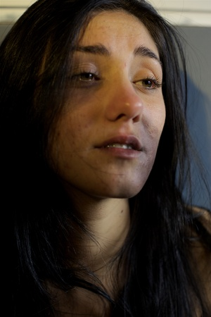 Droevige vrouw bijna huilen na geweld Stockfoto