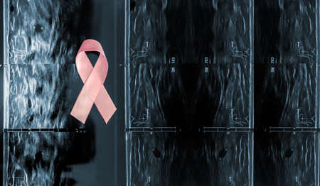Pink breast cancer awareness ribbon on a mammography background Breast cancer prevention concept on an ultrasound