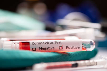 Coronavirus blood test in Laboratory Coronavirus test