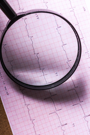 Magnifier on cardiogram Stock Photo