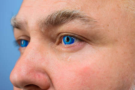Contact Lens. Tears. Man with blue color lens in eye. Cry. Crying man with contact lens. Vision. Sight. Eyesight. 版權商用圖片