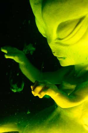 Alien fetus suspended in fluid
