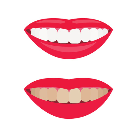 Woman smile. Result of teeth whitening. Dental care