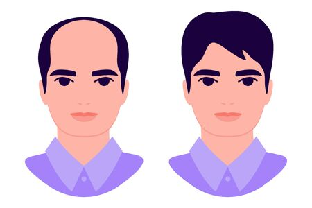Man baldness problem. Male with alopecia before and after. Hair treatment, transplantation, health and beauty concept. Isolated vector illustration