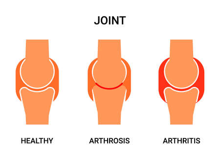 Human joint, healthy, atritis and arthrosis. Joint pain, abrasion of cartilage, inflammation of the joint capsule. Vector illustration Illustration