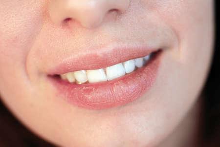 boca sana: Disparo de hermosa joven con labios secos sonriente  Foto de archivo
