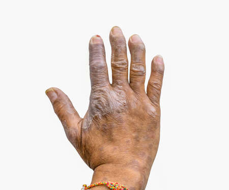 Closeup of psoriasis on the hands of farmers isolated on white background, dermatology skin disease. Psoriasis fingers deformity.