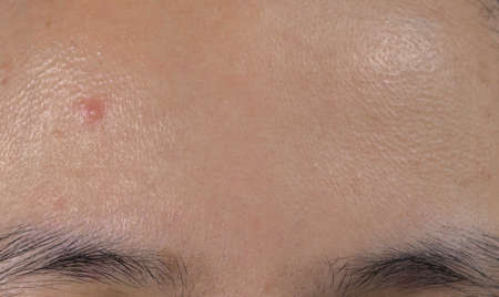 Acne on forehead of oily skin Asian woman. Close comedones.