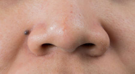Blackheads acne on Asian woman nose. Scar on tip of nose. Open comedones and large pores skin need AHA, BHA or benzoyl peroxide for treatment.