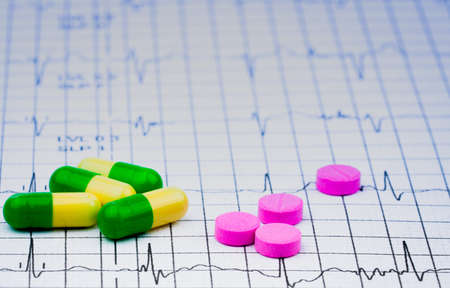 EKG or ECG (Electrocardiogram) graph report paper. EST ( Exercise Stress Test ) result and pills. Package promotion for heart check up in senior or elderly people concept.